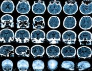 ADHD, Parkinson's New-Found Link Even Stronger With Ritalin